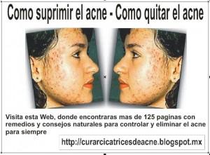 como eliminar el acne y sus marcas | acne juvenil