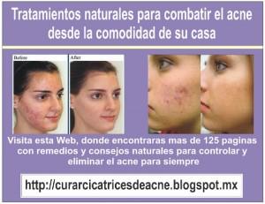 para el acne - remedios caseros - remedios naturales - no mas acne