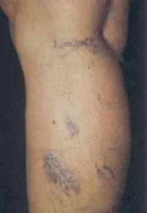 flebologo tratamiento para varices y ulceras varicosas